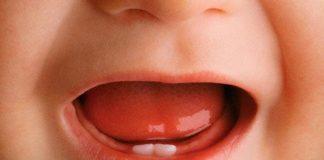 diş çıkaran bebekler için jel
