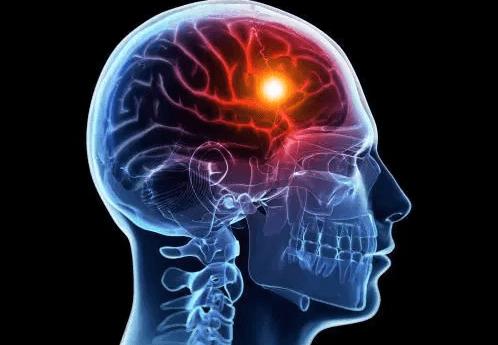 Beyin Felci Neden Olur
