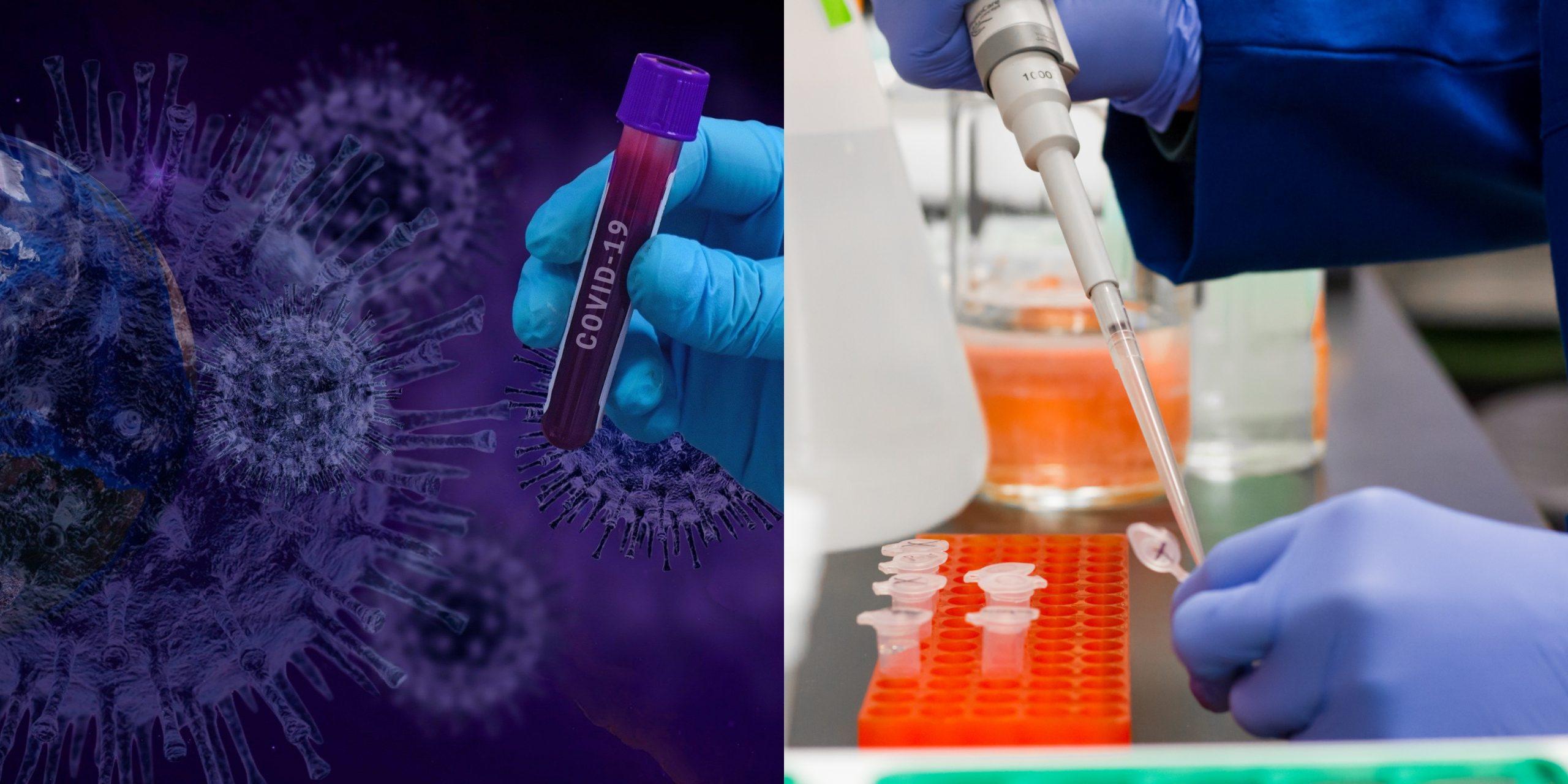 Koronavirüs Aşısı insan denemeleri aşamasına geldi